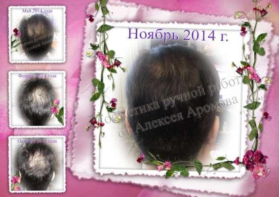 Масло от интенсивного выпадения волос (облысения)